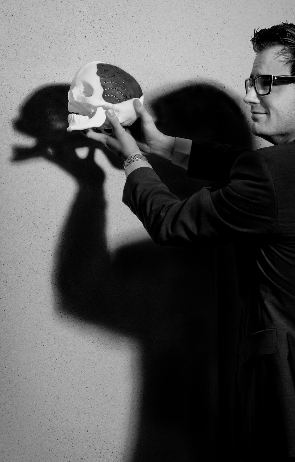 Maikel Beerens, Inventor personified skull implants - Project: Goed bedacht 2013/14